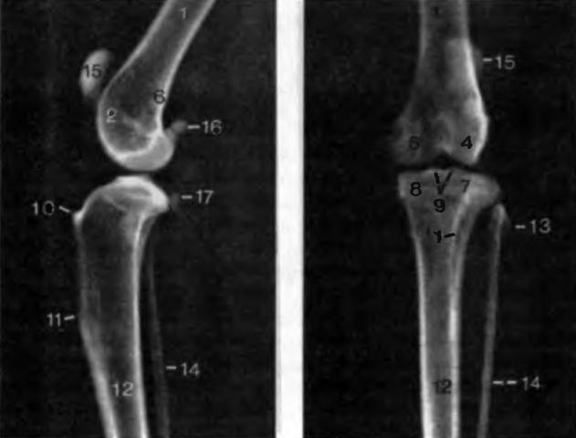 Суставы матис артроз мелких суставов рук симптомы