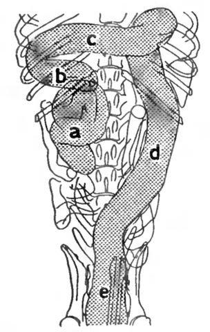Схема рентгеновского