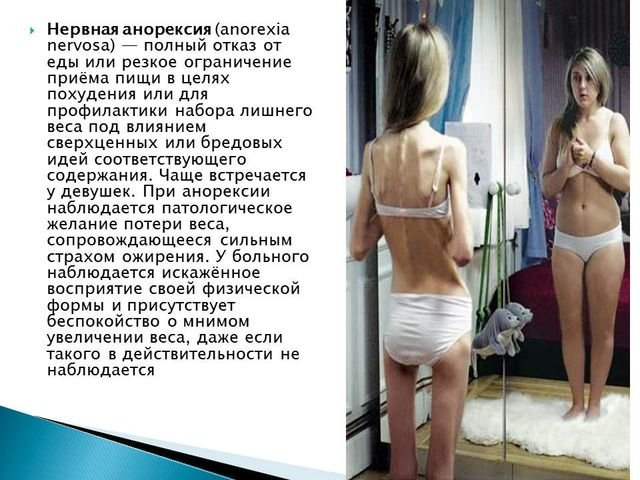 compare and contrast anorexia and bulimia essays Bulimia essay - original essays at competitive costs available here will turn your studying into delight making compare and contrast anorexia nervosa and bulimia.