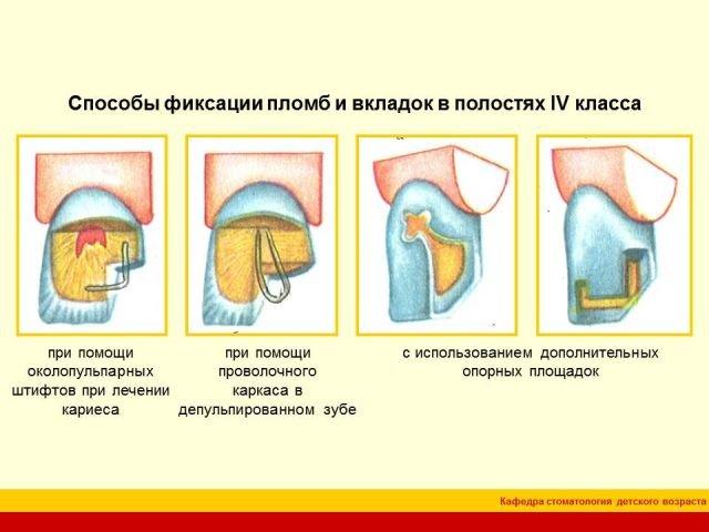 Презентация - особенности препарирования кариозных полостей