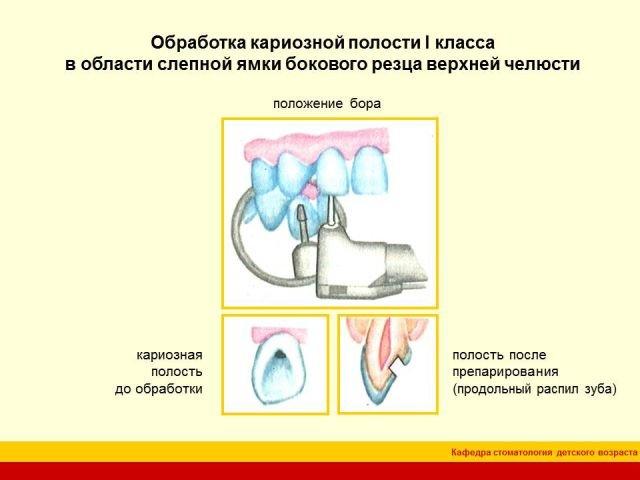 Вариант формирования полости ii класса при сочетанном поражении контактной и жевательной поверхностей: а