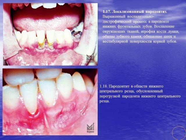 Восполительные процессы зубов