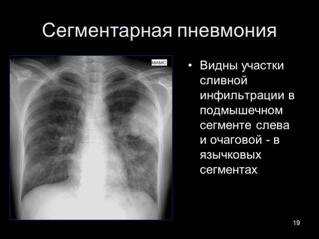 Рентгенодиагностика пневмоний