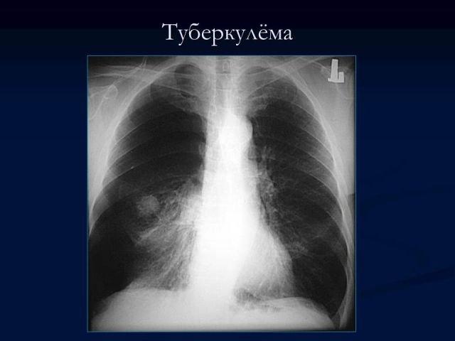 Презентация Рентгенодиагностика и дифференциальная диагностика  Презентация Рентгенодиагностика и дифференциальная диагностика частных форм туберкулёза часть 2