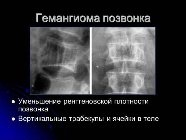 Атипичная гемангиома позвоночника что это такое