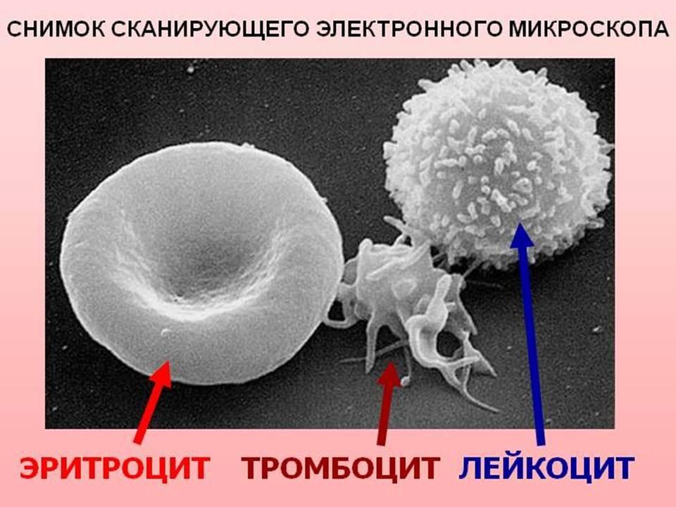 мастерские: Мастерская как повысить тромбоциты после химиотерапии РИВЕР-ХАУС экологически-чистом