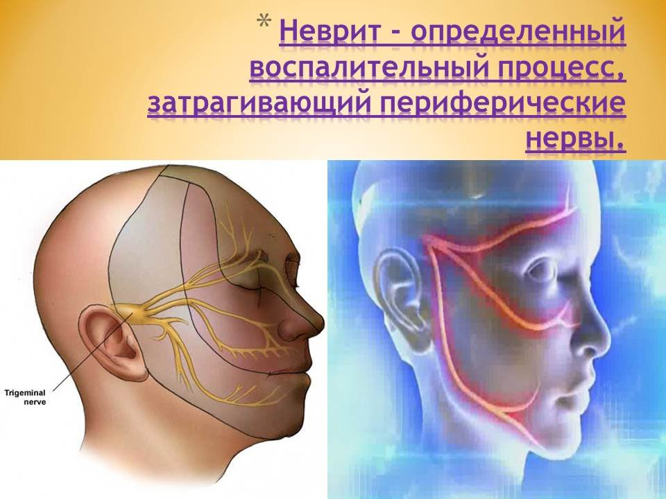 невралгия лицевого нерва лечение фото