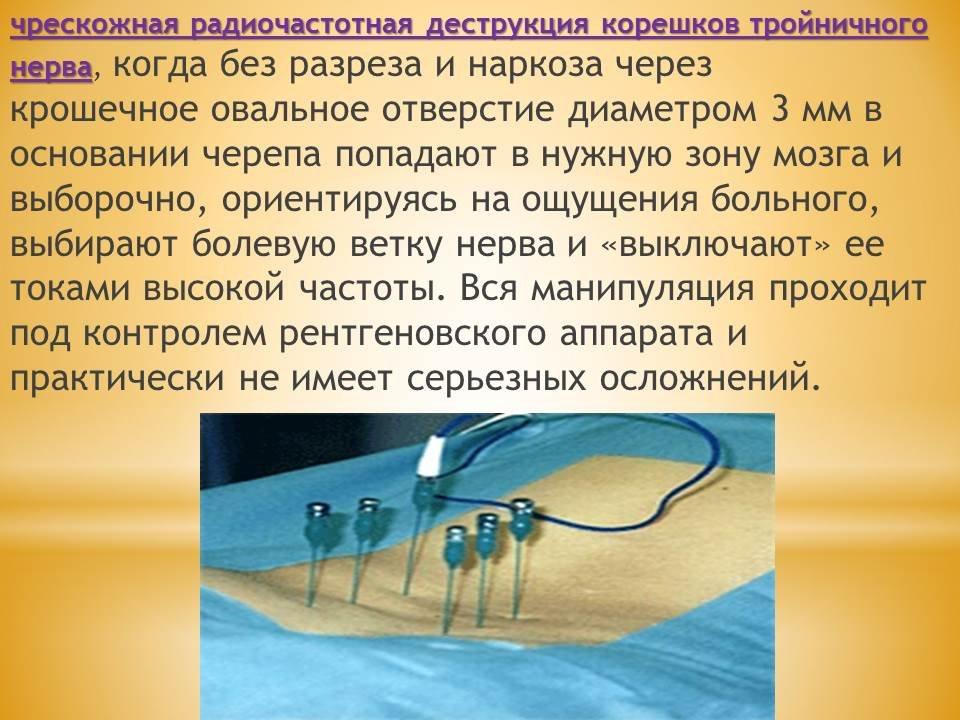 Лечение невралгии тройничного нерва в домашних условиях 117