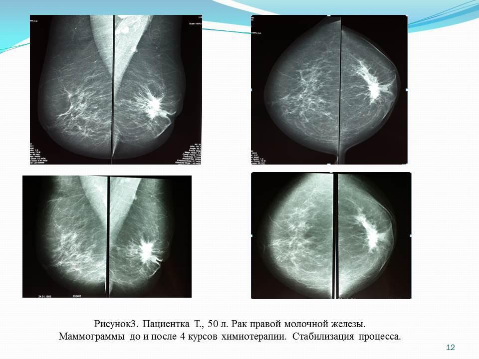 Чем отличается маммограмма от узи молочных желез