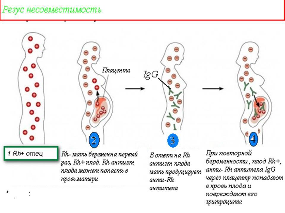 Антитела при 7 беременности