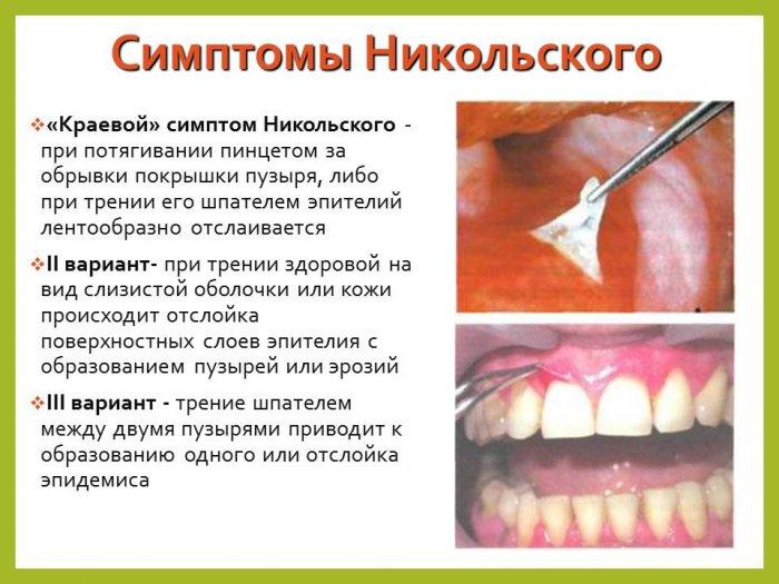 Пузырчатые дерматозы